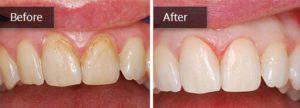 LW Dental